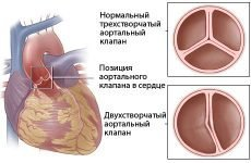 Що таке двостулковий аортальний клапан?