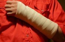 Як відбувається перелом променевої кістки: симптоми і лікування