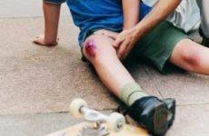 Мазь при ударах і травмах ноги, руки, знеболюючі мазі після травм коліна