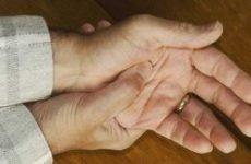 Псоріаз кісток: причини, симптоми і лікування