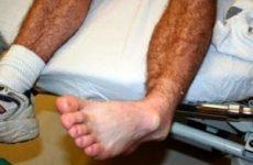 Вивих стопи: лікування в домашніх умовах, перша допомога при травмі гомілкостопа