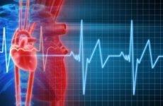 Особливості лікування тахікардії при остеохондрозі