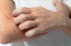 Алергічна екзема на руках: причини і лікування