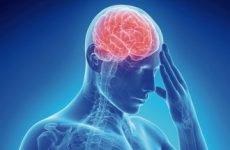 Що таке церебральна ангіодистонія і яке її лікування