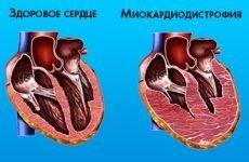 Що таке дисгормональна кардіоміопатія: симптоми і лікування