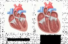 Алкогольна кардіоміопатія — смертельно-небезпечне захворювання