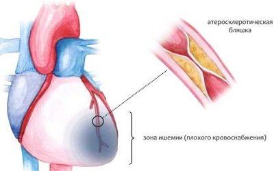 Як відрізнити біль у серці від невралгії: 7 головних відмінностей