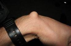 Тверда шишка на зап'ясті руки з зовнішньої сторони зверху під шкірою: причини і лікування