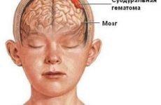 Гематома на голові після удару: лікування в домашніх умовах, перша допомога