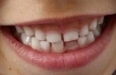 З-за чого діти скриплять зубами уві сні і як впоратися з нездужанням