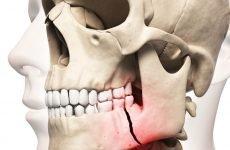 Перелом нижньої щелепи: всі особливості травми