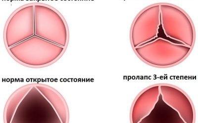 Пролапс мітрального клапана (ПМК) 1, 2 і 3 ступені: що це і чим небезпечний