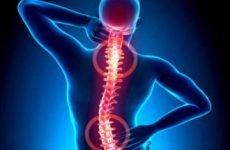 Аритмія і остеохондроз грудного або шийного відділу хребта