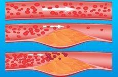 Який плід корисний при тахікардії і яке харчування при ній