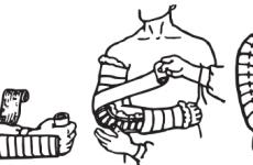 Перша допомога при переломі передпліччя: правила надання і подальше лікування