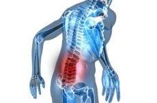 Симптоми переломів поперекового відділу хребта – причини виникнення і класифікація травми, особливості ознак залежно від ступеня тяжкості, способи лікування патології