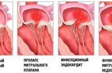 Недостатність мітрального клапана: причини, діагностика та лікування клапанного дефекту