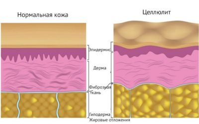 Лімфодренажний масаж від целюліту: ефективність, результати, поради