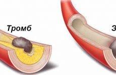 Тромбоз: види, чинники ризику, лікування та профілактика закупорки судин