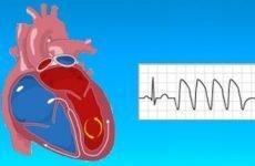 Шлуночкова аритмія серця – причини, симптоми і лікування