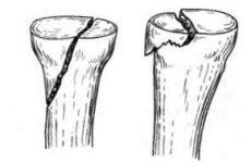 Перелом головки променевої кістки ліктьового суглоба із зміщенням і без нього: лікування