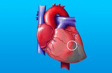 Використання тропонинового тесту при інфаркті