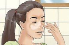 Сонячний (пляжний) лишай: причини, симптоми і лікування