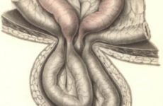 Від чого утворюється грижа після операції на хребті, чому утворюється після видалення?
