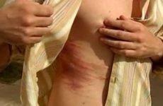 Симптоми перелому або тріщини ребра: характерні особливості та відмінності ушкоджень, їх діагностика і лікування