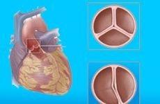 Все про регургітації аортального клапана