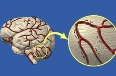 Як зміцнити судини головного мозку: препаратами і народними засобами