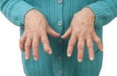 Лікування ревматоїдного артриту: препарати нового покоління, код за МКХ 10, перші симптоми