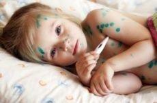 Як проявляється вітрянка у дітей: період заразності, початок, як хворіють?