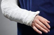 Як визначити перелом руки за зовнішніми ознаками і на рентгені