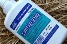 Хлоргексидин від лишаю – інструкція по застосуванню для дітей і дорослих, ціна, відгуки, форма випуску, аналоги, показання та протипоказання