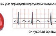 Синусова аритмія серця: що це таке і чим вона небезпечна?