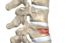 Компресійний перелом грудного відділу хребта: лікування та лфк, наслідки травми