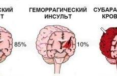 Причини інсульту в молодому віці у чоловіків і жінок