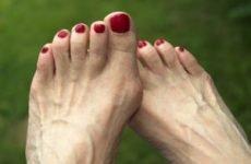 Чим лікувати подагру на нозі: що за хвороба, симптоми у чоловіків, лікування в домашніх умовах народними засобами, що приймати, пити?
