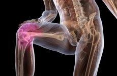 Пошкодження зв'язок колінного суглоба: симптоми і лікування бічний, передній хрестоподібній зв'язок