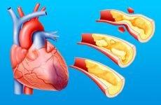 Симптоми, ознаки і наслідки мікроінфаркту у жінок і чоловіків