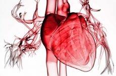 Ознаки і лікування типової форми інфаркту міокарда