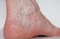 Причини та ефективні способи лікування варикозного дерматиту