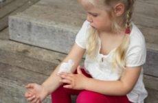 Мазь від лишаїв на голові для дітей, дитини, лікування шкіри сірчаної маззю