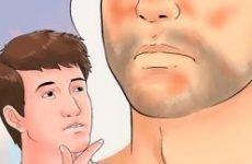 Себорейна екзема: причини і лікування. Як і чим лікувати екзему на голові в волоссі