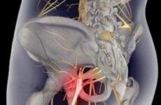 Сидальческий нерв: симптоми і лікування в домашніх умовах, уколи, як лікувати?