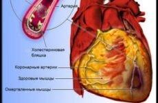 Синдром Дресслера: симптоми і лікування постінфарктної аутоімунної патології