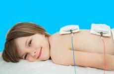 Все про електрофорезі з еуфіліном