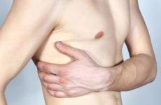 Як виявляється перелом ребра, його необхідне лікування