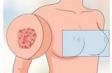 Екзема сосків: причини, симптоми і лікування